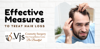 _ Effective Measures To Treat Hair Loss